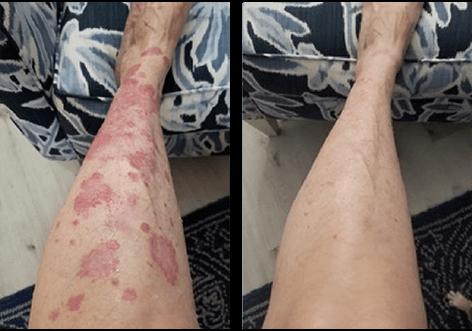 cbd for skin picking